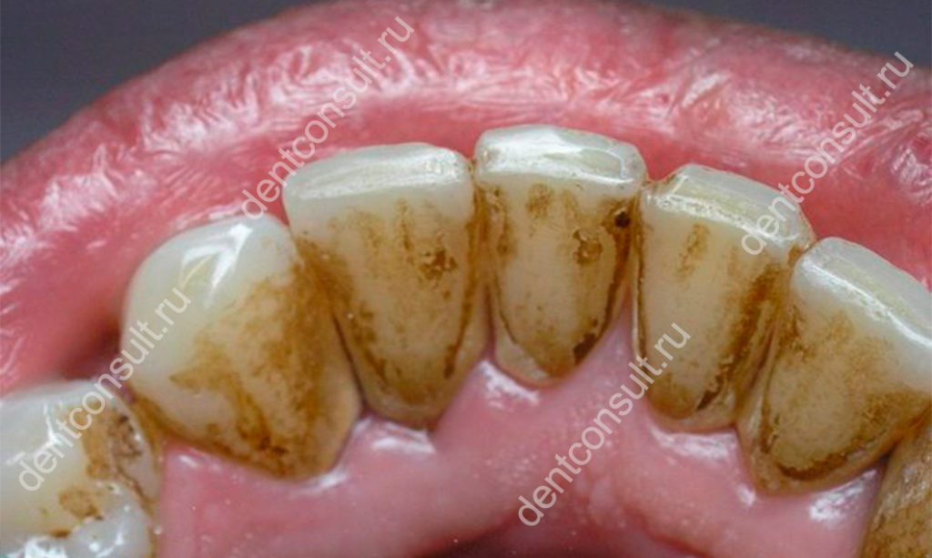 удалить зубной камень в домашних условиях