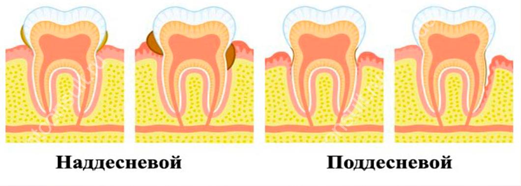 виды зубного камня бывают
