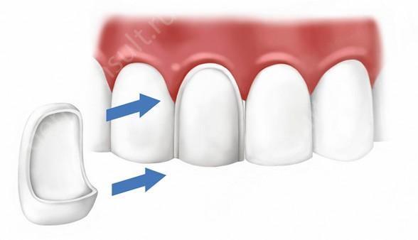 виниры за зубы
