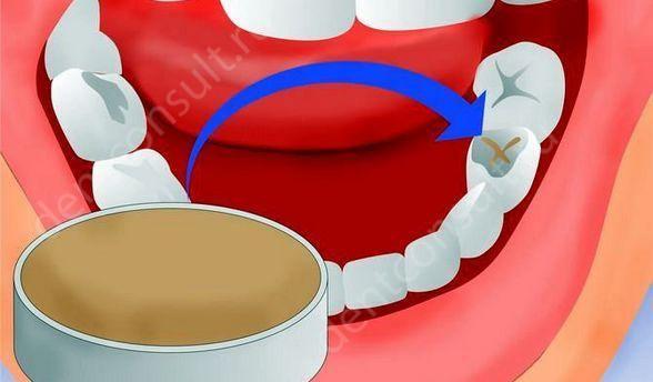 Как в домашних условиях сделать пломбу для зуба в домашних условиях