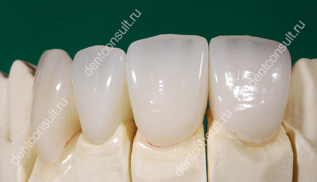 Керамокомпозитные зубные коронки
