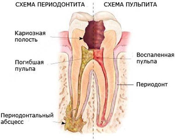 Периодонтит и пульпит