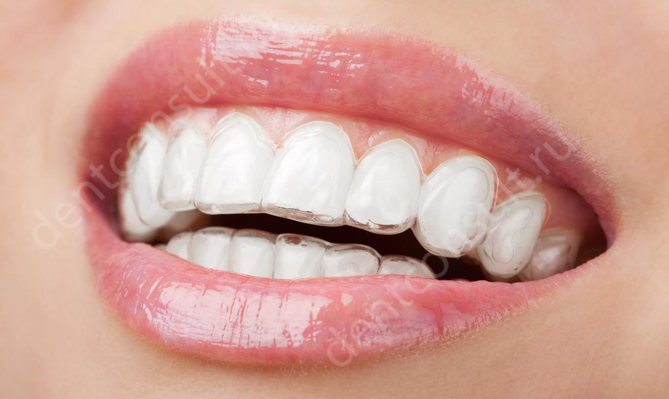 Выравнивание зубов капами, или элайнерами, показания, фото видео