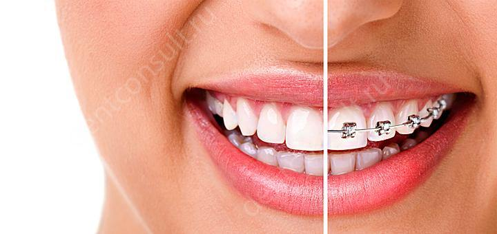 Технология выпрямления неправильно растущих зубов