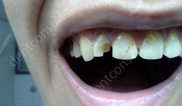 когда нужно устанавливать коронку на передний зуб