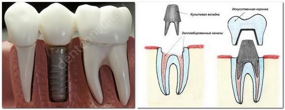 Как зубы крепятся к деснам