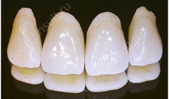Сравнение коронок для восстановления передних зубов, что лучше?