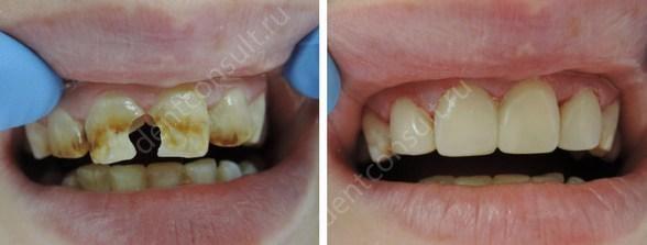 коронки на передние зубы до и после