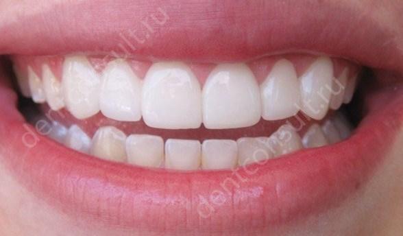 Виниры на зубы - микропротезы для безупречной улыбки