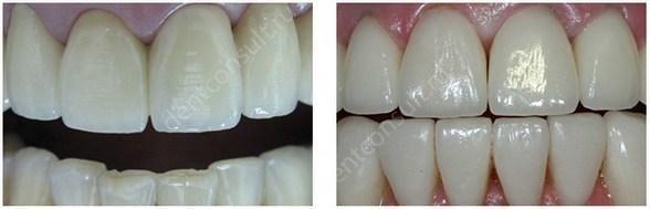 керамические и металлокерамические коронки на передние зубы