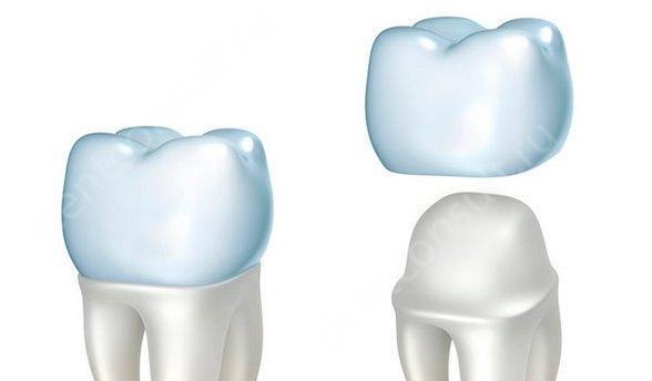 Сколько стоит поставить зубную коронку в клиниках Москвы в 2016 году?