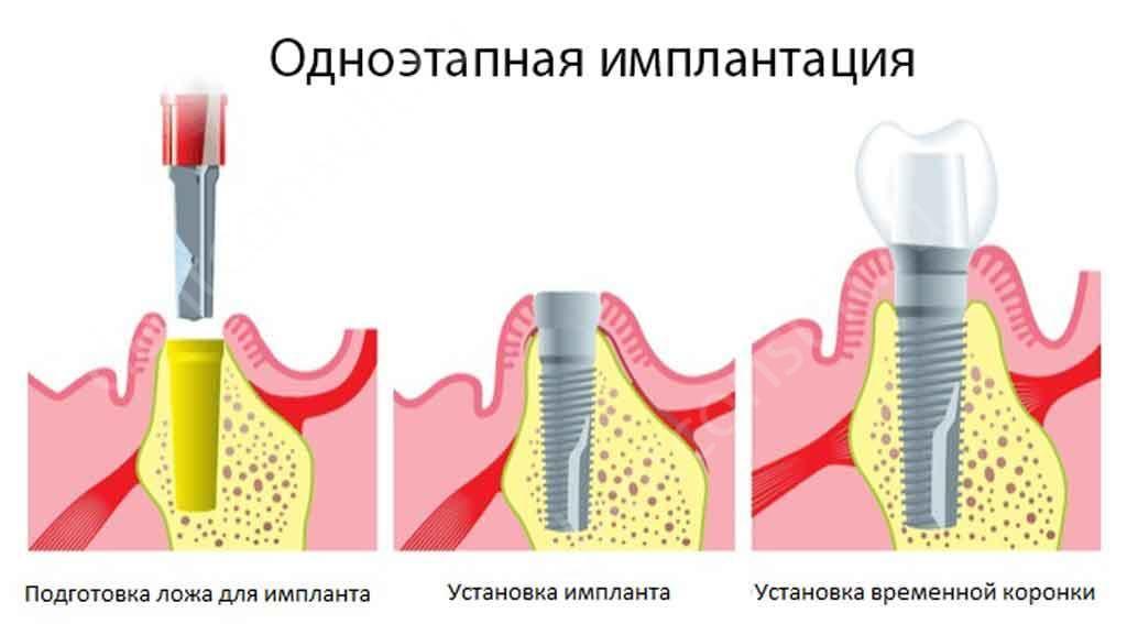 odnoehtapnaya_implantaciya_zubov