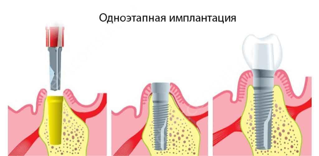 одноэтапная1