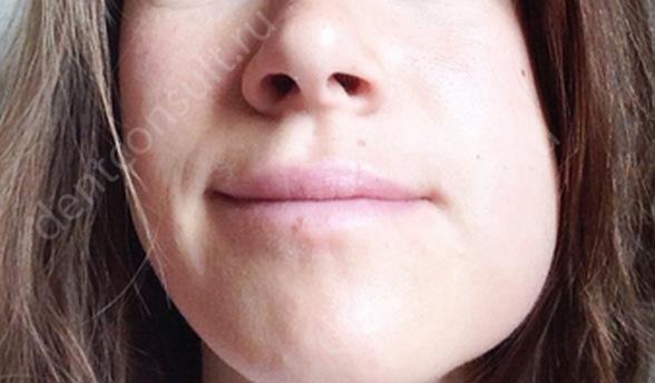 опухоль щеки