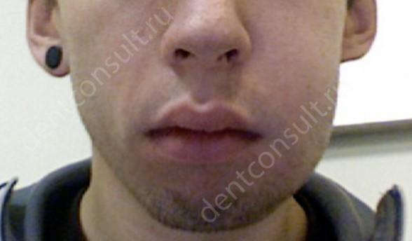Опухоль, как симптом воспаления зуба