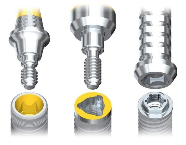 Основные типы имплантов