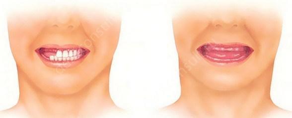Полное или частичное отсутствие зубов