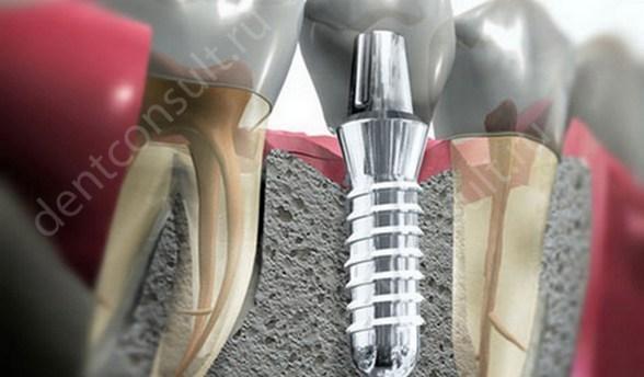 Протезирование на имплантах этапы от а до я, с фото и видео
