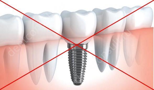 Какие есть противопоказания к имплантации зубов и возможные осложнения?
