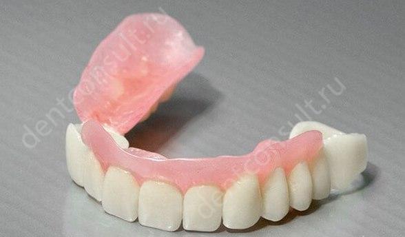 Зубной протез сэндвич, или свои зубы для опоры съемника