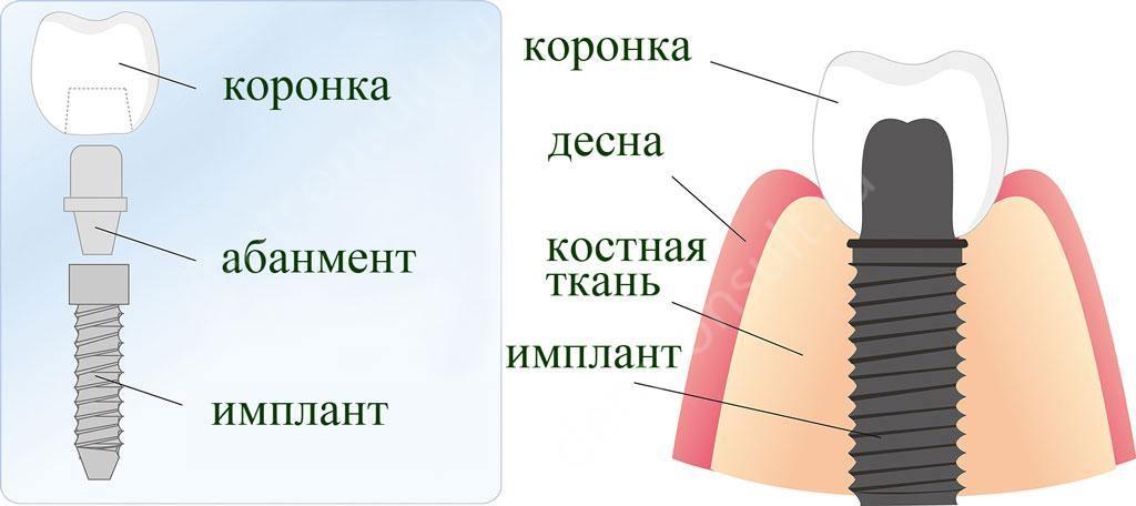 строение-импланта
