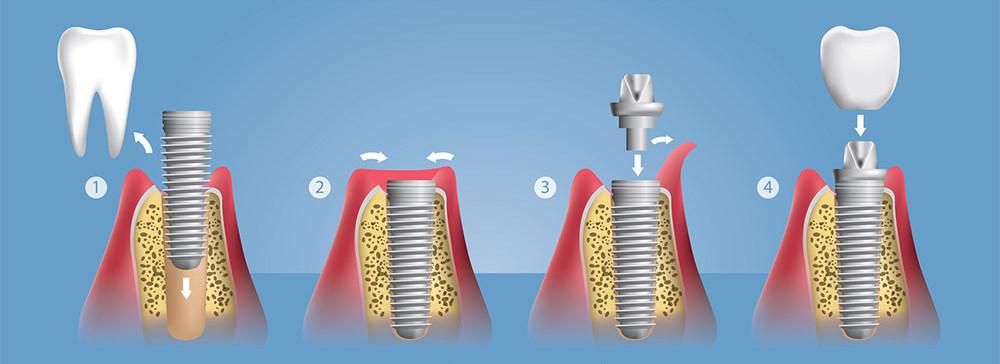 установка двусоставных имплантов