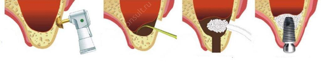 установка-импланта-и-костной-ткани