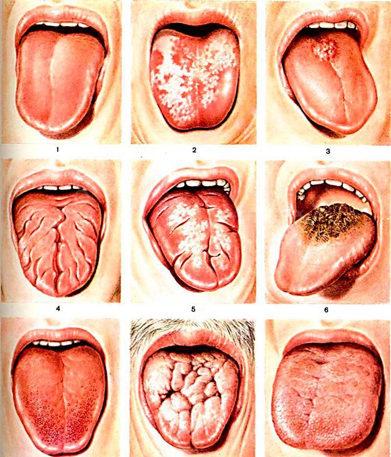 Разновидности заболеваний языка