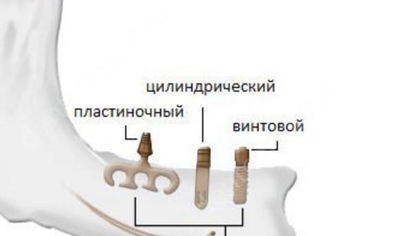 классификация имплантов по форме