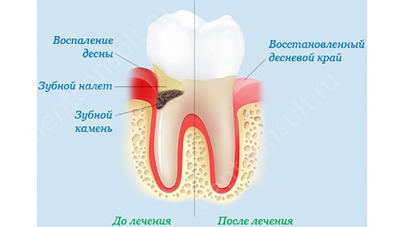 Если воспалилась десна зуба что делать в домашних условиях