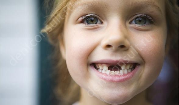 отсутствуют молочные зубы