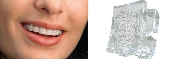 Аmerican Orthodontics