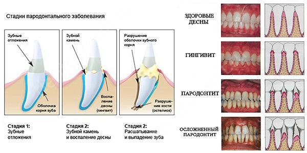 Виды заболеваний пародонта