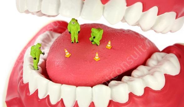 При несоблюдении гигиены между зубов откладывается зубной камень, и чем его больше, тем резче и неприятнее запах изо рта.