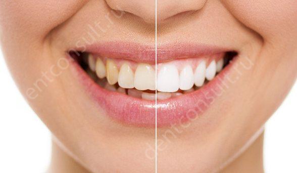 В чем заключается процедура отбеливания зубов