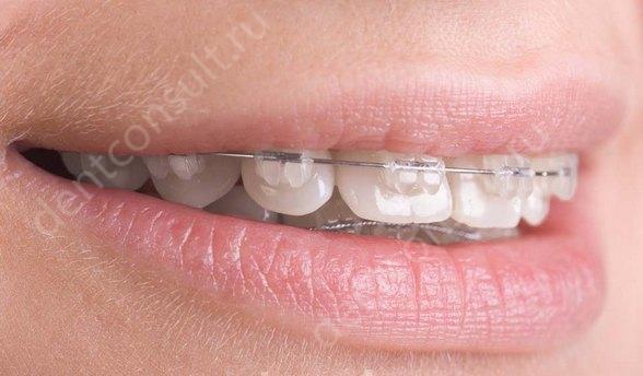 Зубы во время брекетов