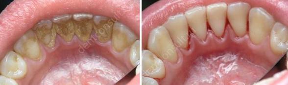 Фото: до и после удаления зубного камня с внутренней стороны