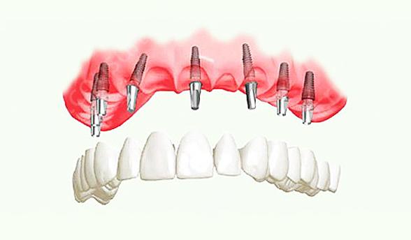 Отзывы пациентов и врачей об экспресс имплантации зубов!