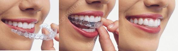 Каппы на верхние зубы