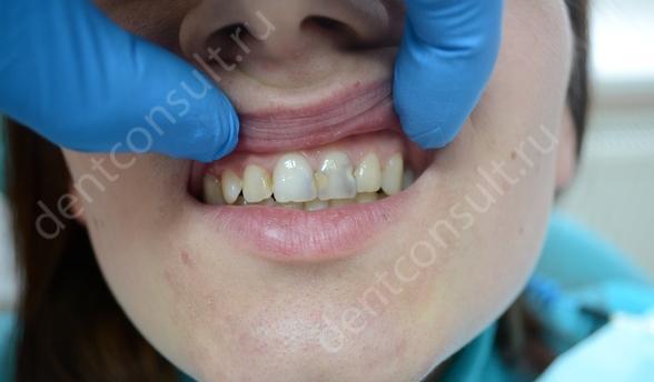 Фото: кариес передних зубов, как противопоказание для отбеливания