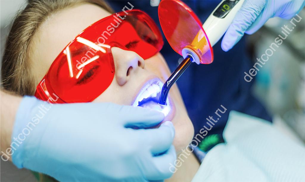Отбеливание зубов в стоматологии, стоматологической клинике: профессиональное, безопасное, клиническое, отбелить у стоматолога