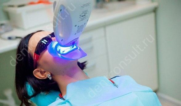 А вам подойдет отбеливание зубов лазером, фото до и после!