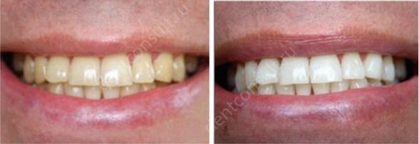 лазерное отбеливание зубов: до и после
