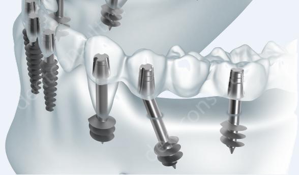 Экспресс-имплантация – имплантация с немедленной нагрузкой протезом