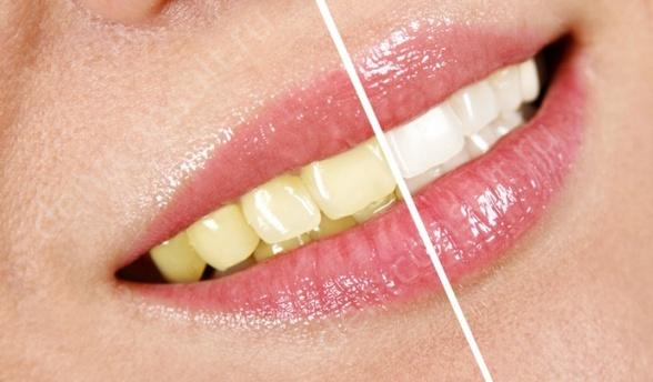 Профессиональное отбеливание зубов виды с фото и видео