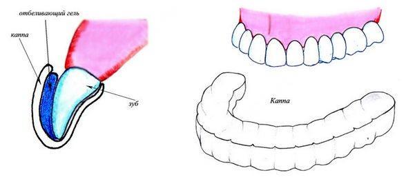 отбеливание зубов каппой