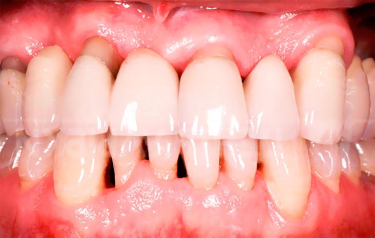 Пародонтоз зубов лечение в домашних условиях