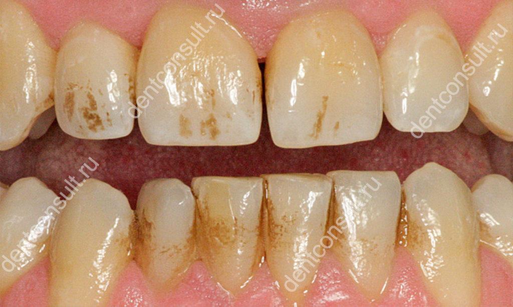темные зубы