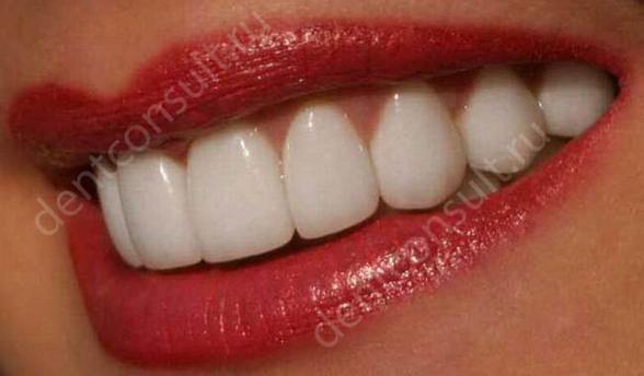Лучший способ отбеливания зубов, обзор методов!