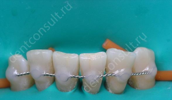 Показания к шинированию зубов, виды и фото до и после!